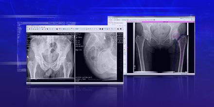 Oprogramowanie do diagnostyki i planowania