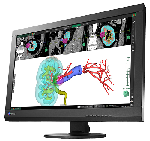 EIZO RadiForce MX242