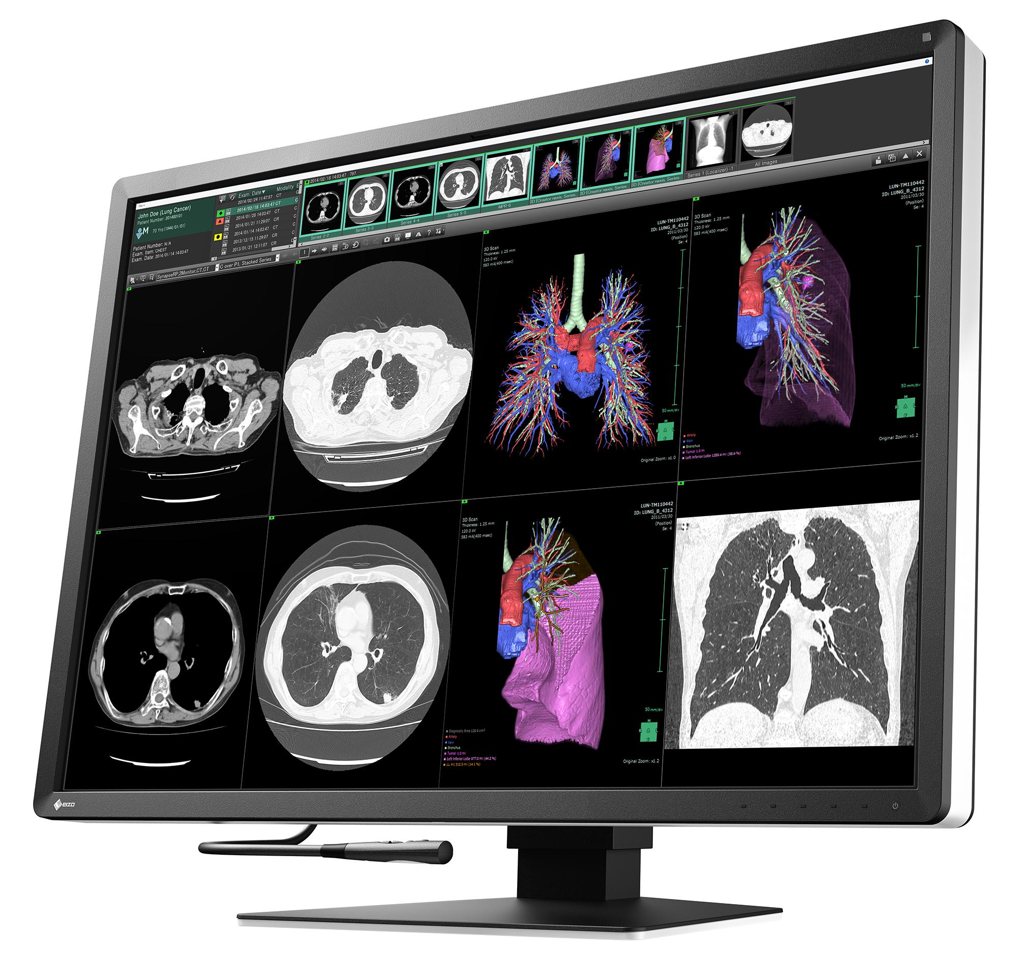 """Nowość w portfolio medycznym – EIZO RadiForce RX1270: 12-megapikselowy, kolorowy monitor 30,9"""" do zastosowań multimodalnych"""