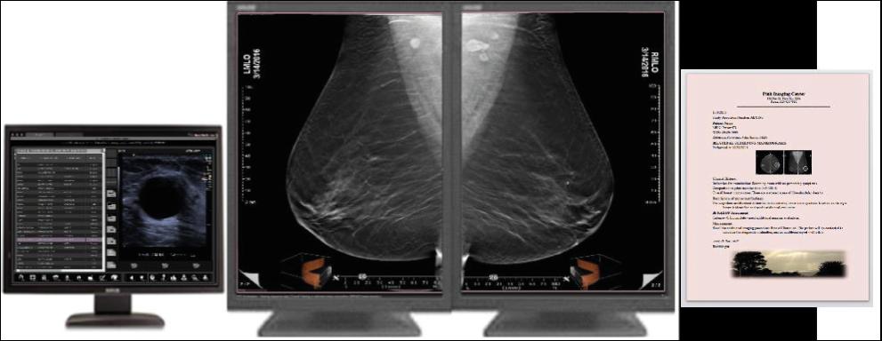 Three Palm Software - Oprogramowanie do skriningu i diagnostyki w mammografii