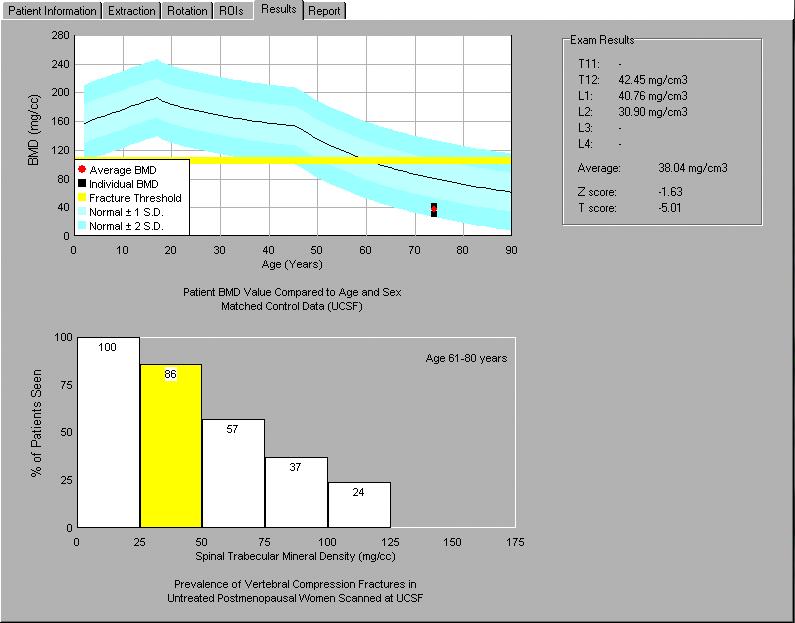 QCT PRO - oprogramowanie do oceny gęstości kości w istocie gąbczastej z obrazów CT