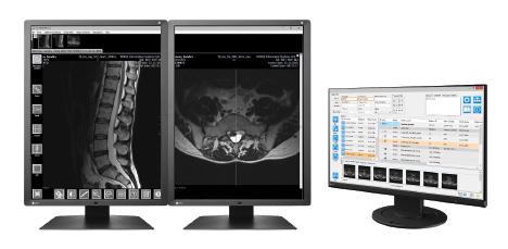 IQ-VIEW / PRO - Stacja do odczytu badań radiologicznych
